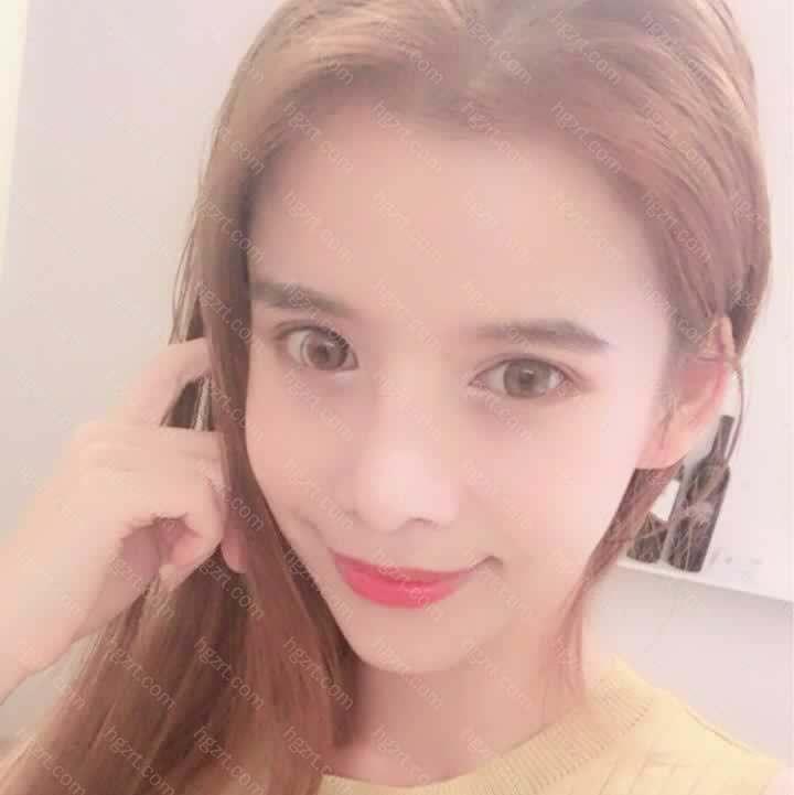【V-LINE瓜子脸手术第513天】大家好!我是莉莉