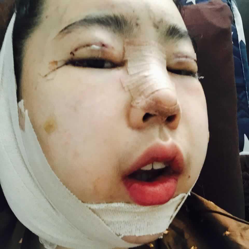 我在韩国做的眼部多项+硅胶隆鼻+切开埋线双眼皮+切下颌角的亲身经历。