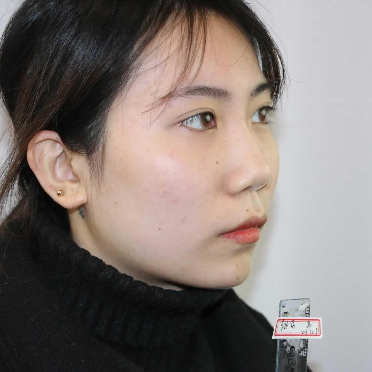 光整鼻子有多少人是整完后悔的?长沙亚韩的鼻综合手术真不错