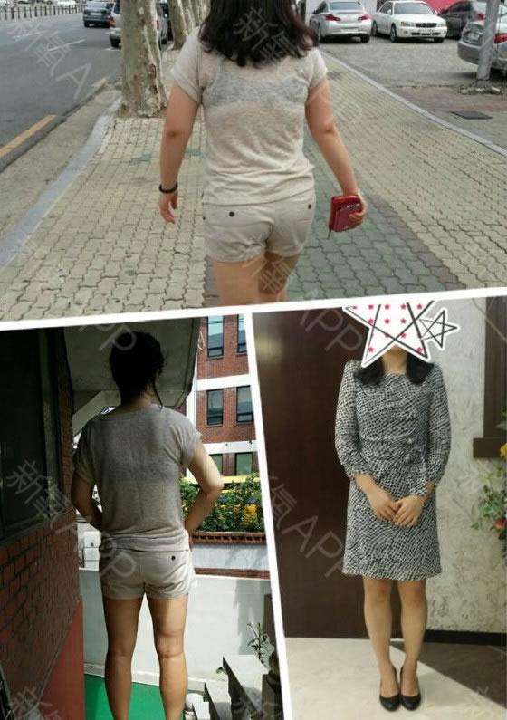 找韩国365mc做的吸脂瘦手臂价格合理,蝴蝶臂也没了