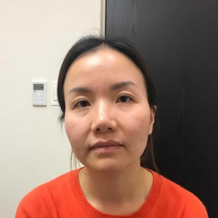 在韩国做的下颌角整让我有了巨大的改变,看看我的效果如何。