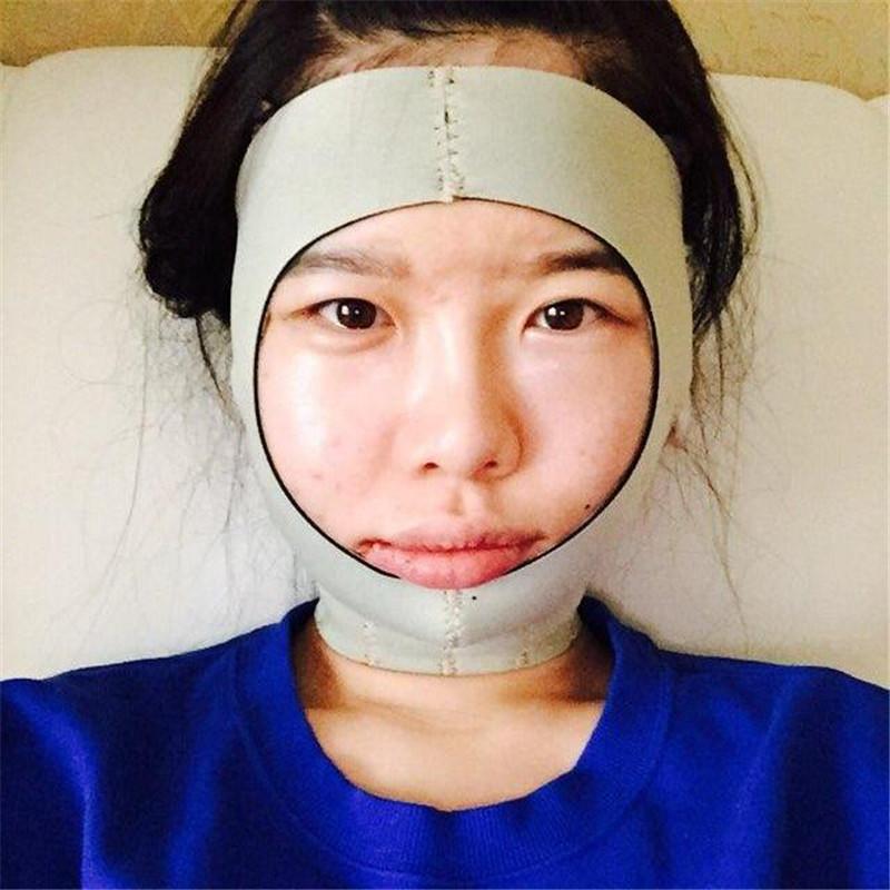 做完颧骨手术后悔死了,早知道效果这么好早几年就来韩国做这个手术