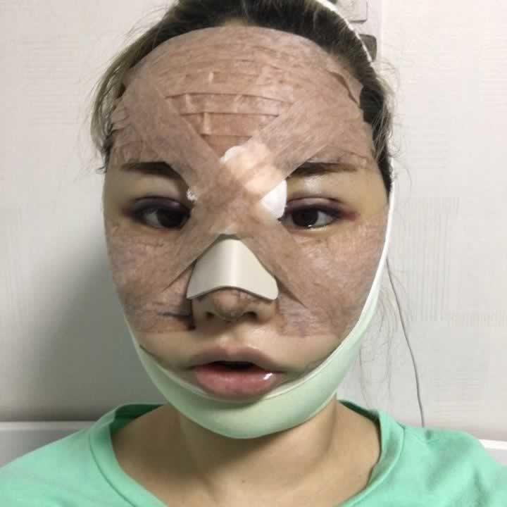 这是手术前的照片