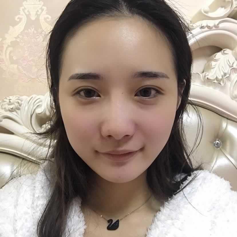 想要改变就去韩国爱我做面部轮廓手术,看看我的效果你就明白了。