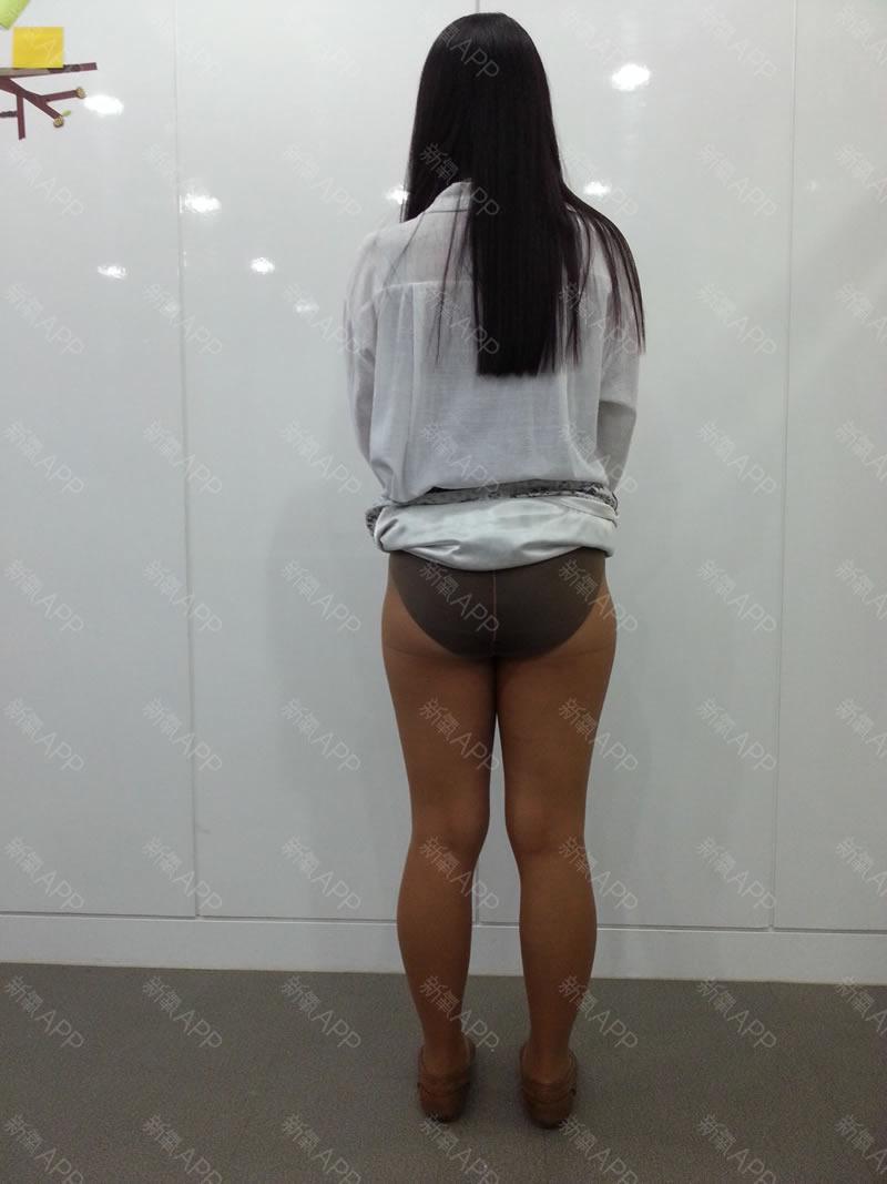 韩国365吸脂医院不仅腰腹吸脂做得好大腿吸脂效果也很赞哦