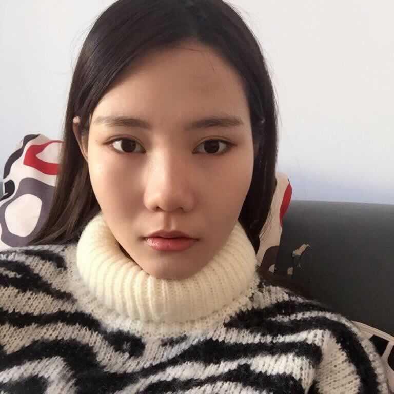 在韩国爱我做的Vline手术,让我很满意。
