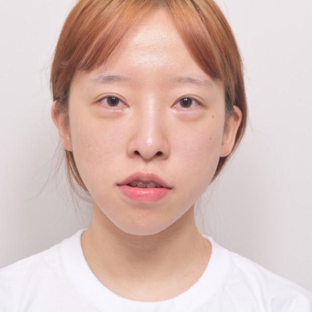 韩国EU整形外科医院给我做的地包天手术对我的改变真的很大。