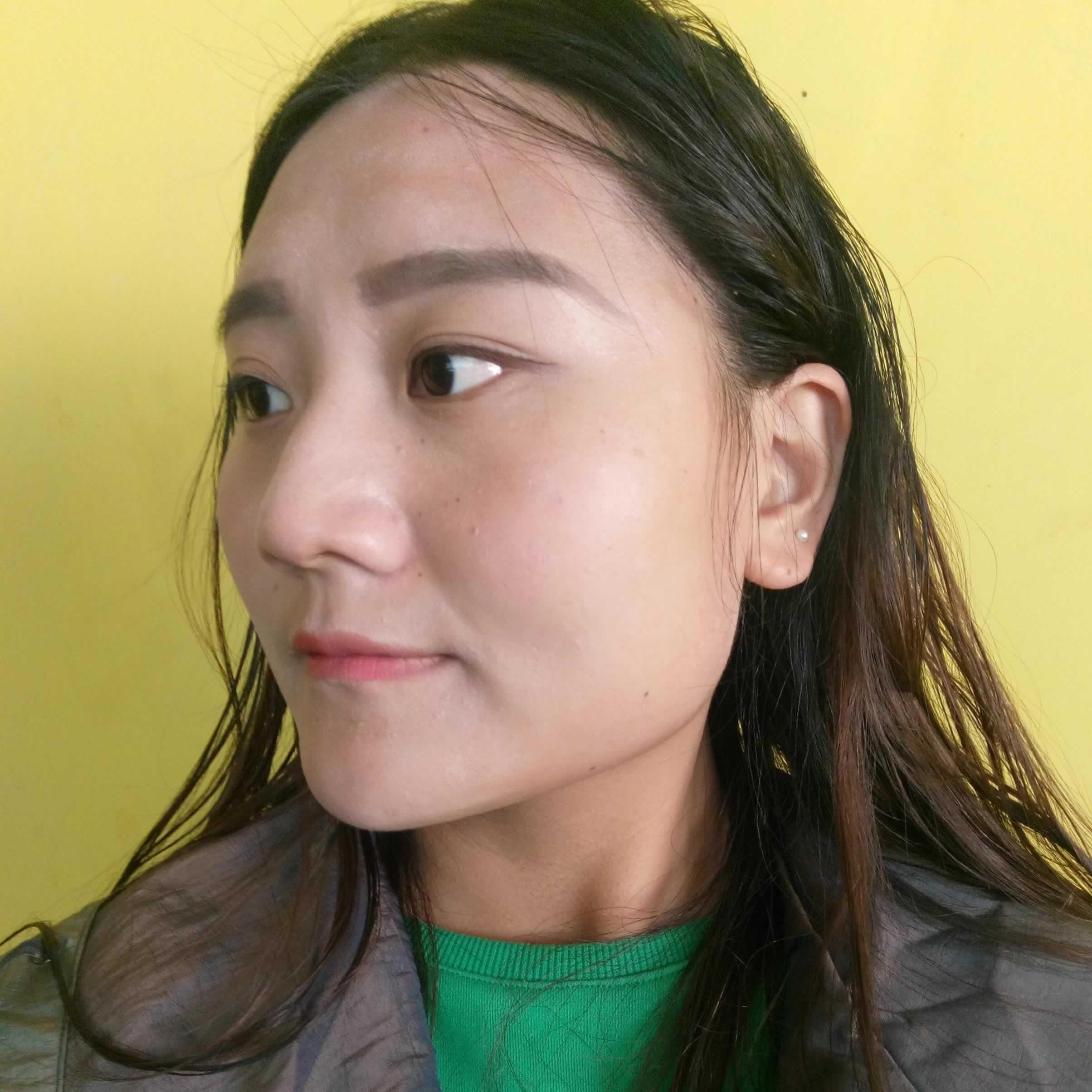 V-LINE瓜子脸手术已经做了很久了,在韩国绮林家做的