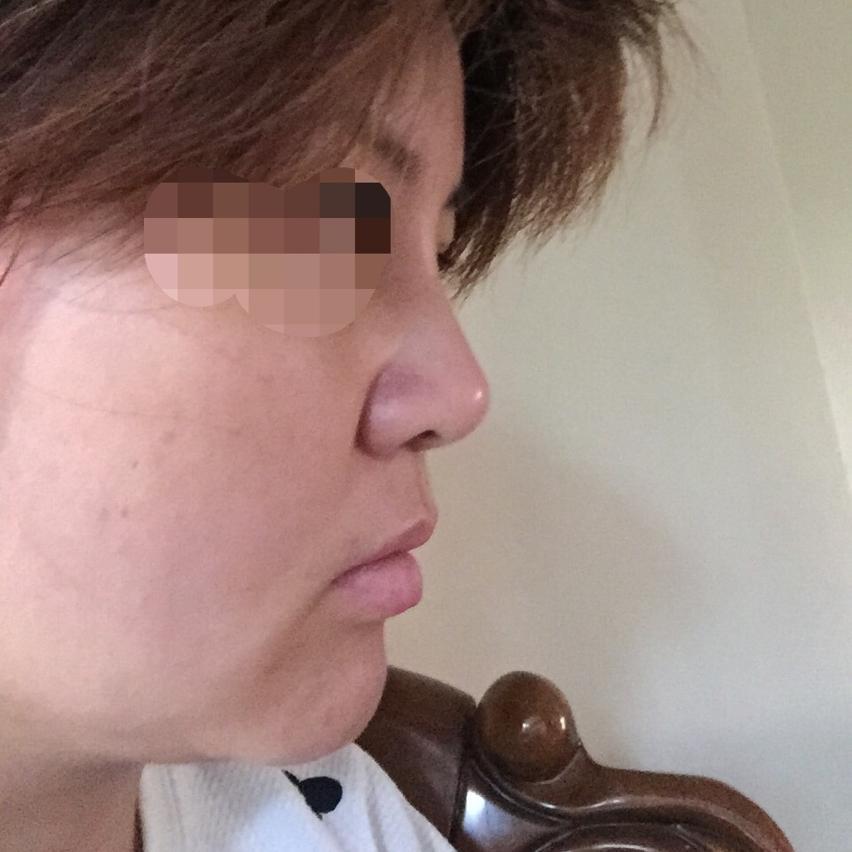 在韩国做的鼻部修复手术,让我的颜值有上升一个台阶,很开心。