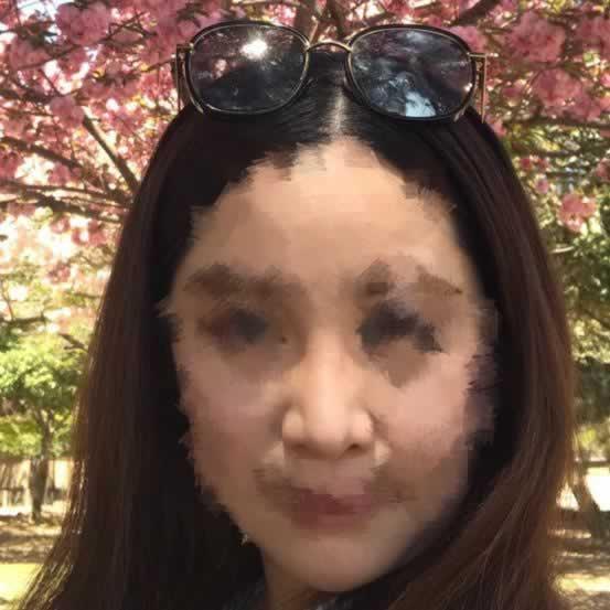 我在韩国做的开外眼角手术效果真是让我很满意。