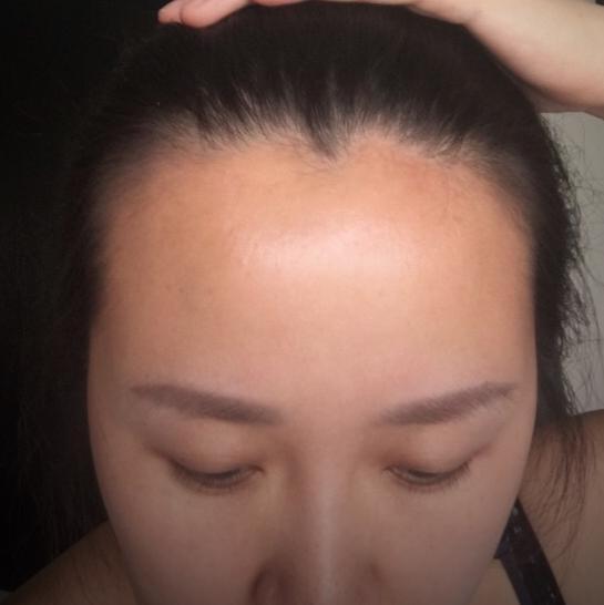 做完种植发际线一个月后的变化,效果我很满意。