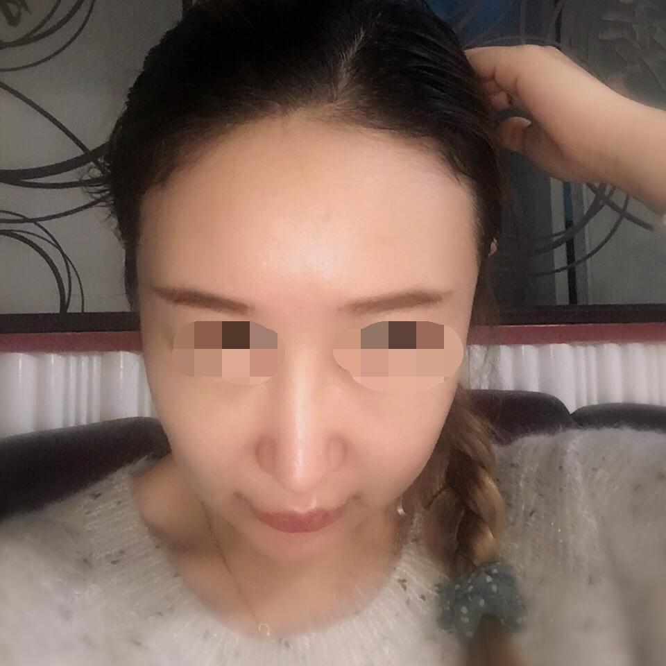 种植发际线让我变得更加年轻。来看我的手术效果图。