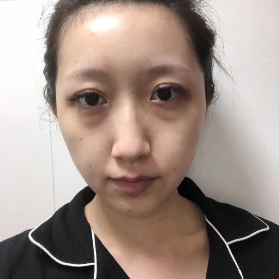 膨体隆鼻的材料对身体有害吗?我就是在桂林华美做的膨体隆鼻