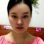 在韩国拉菲安医院做取颊脂垫瘦脸,恢复快一周后面部更加协调啦