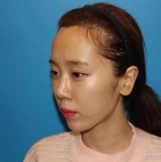 韩国毛杰琳做种植发际线手术,把我的亲身经历给大家分享一下。