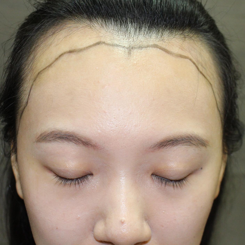 韩国毛杰琳做种植发际线怎么样,半年多的效果如何。