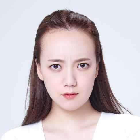 种植发际线如何,在韩国毛杰琳做的效果真心不错。