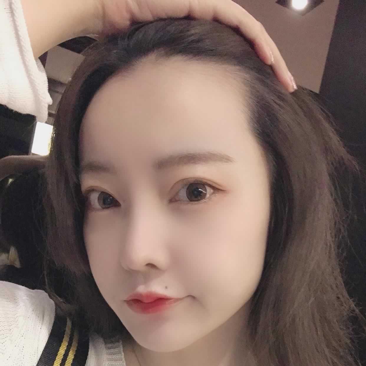 做完种植发际线手术后,我才知道韩国毛杰琳植发医院是这么的好。