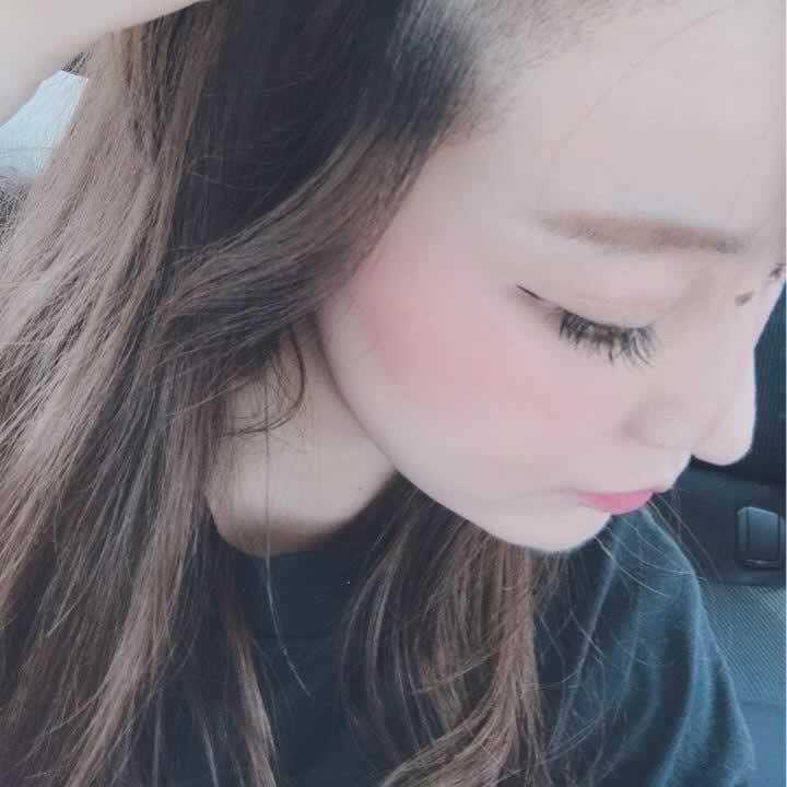 【种植发际线第10天】植发已经第10天啦