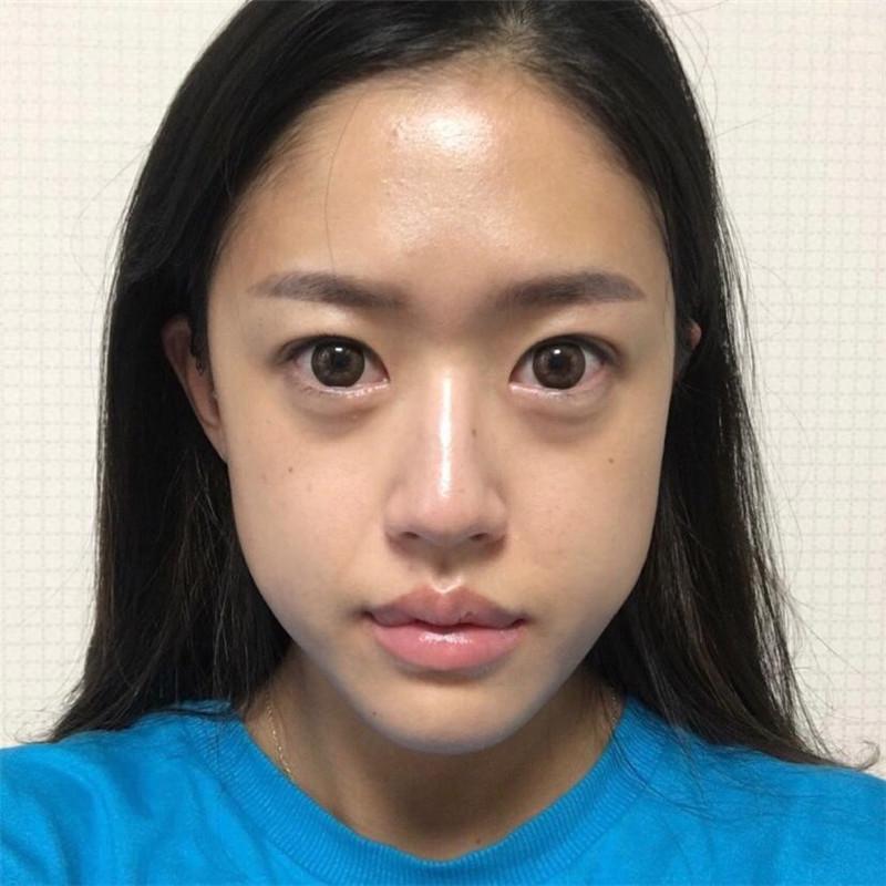 想做面部不对称矫正就来韩国EU颌面轮廓整形外科吧,院长的技术真的不是吹出来的。
