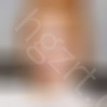去韩国EU颌面轮廓整形外科做了vline手术,朋友都说羡慕我现在的脸型呢~,