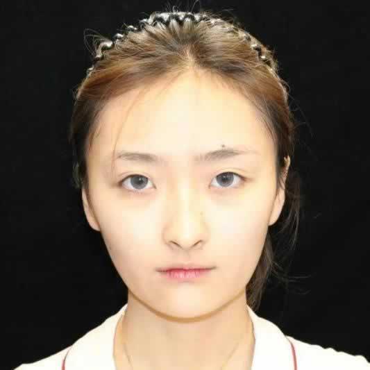 正好赶上韩国原辰整形医院眼综合手术的活动毫不犹豫就做了,还不错吧。