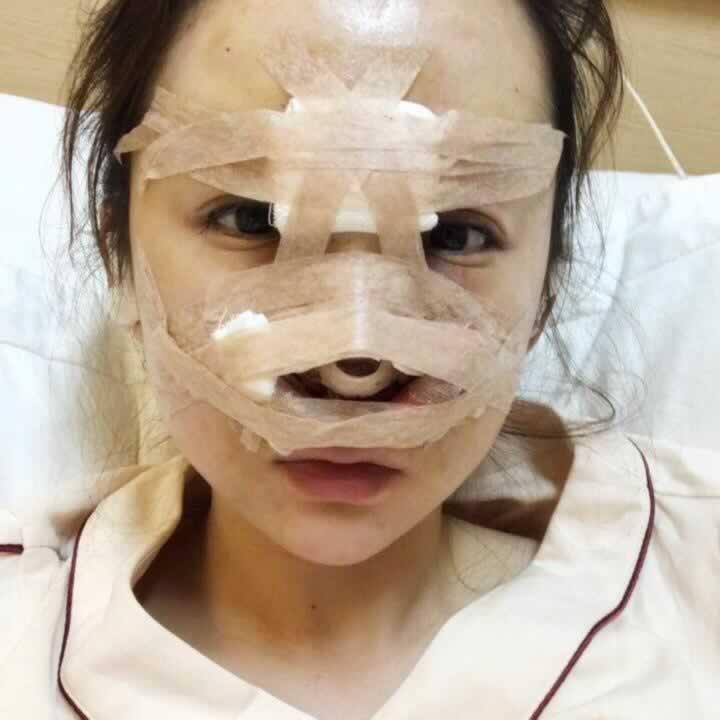 鼻子太难看了就在西安画美做了鼻部多项手术,你们看这鼻子怎么样。