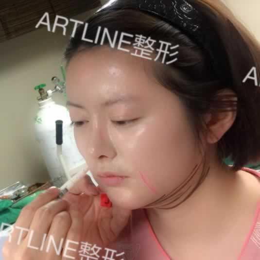 光纤溶脂瘦脸怎么样?ARTLINE皮肤科整形医院做的怎么样