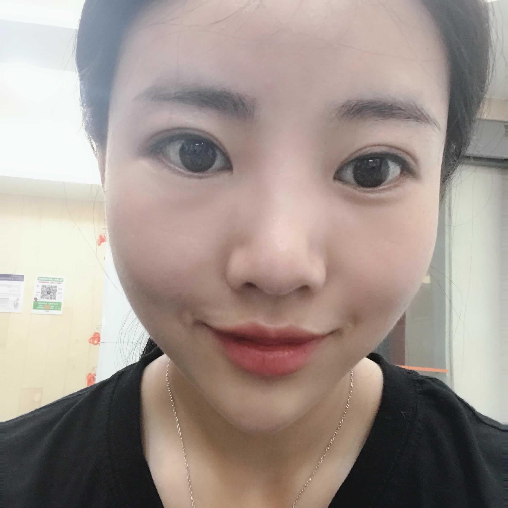 在韩国宝士丽做鼻部多项术后效果怎么样?