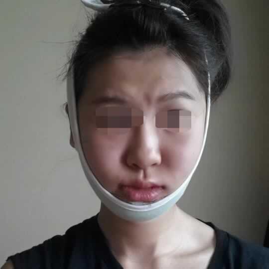 V-LINE瓜子脸手术真的可以让大胖脸变瘦吗?小脸真的太好看了。