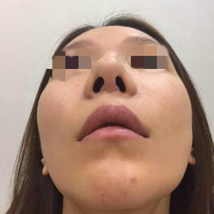 面诊了朴院长的轮廓和徐院长的鼻子