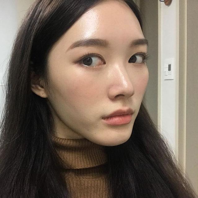 扁平脸在韩国佳轮韩手术5个月,亲身经历验证颧骨颧弓整形效果