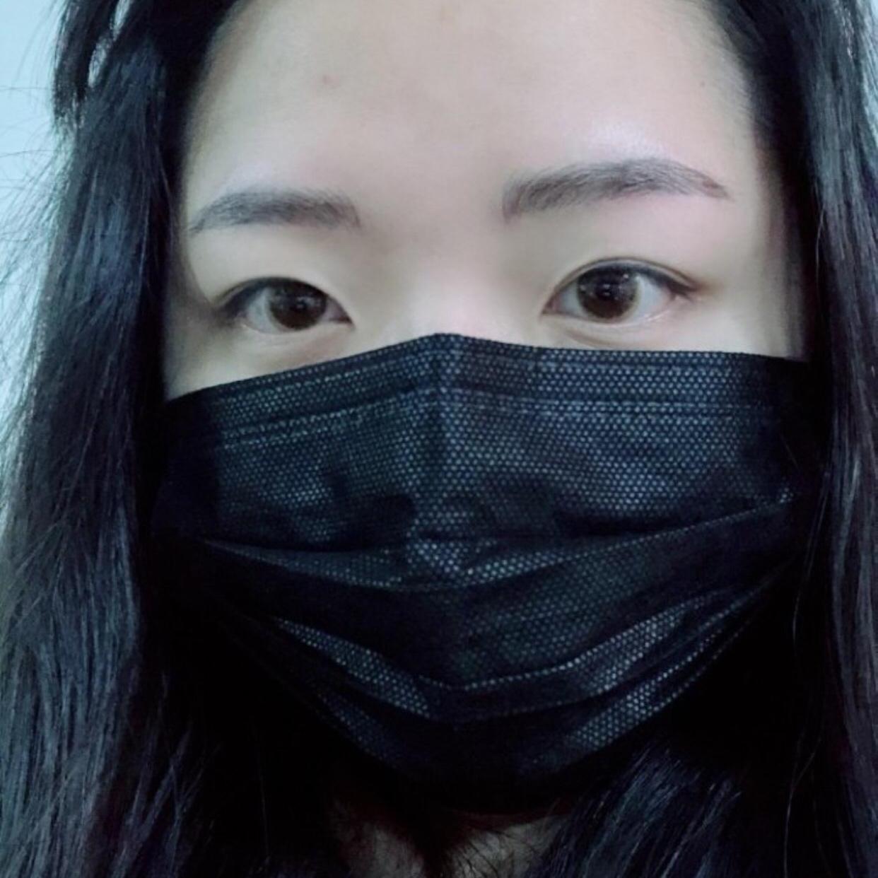 在韩国朱诺做了双眼皮修复加提肌还有后眼角下至,效果很满意~