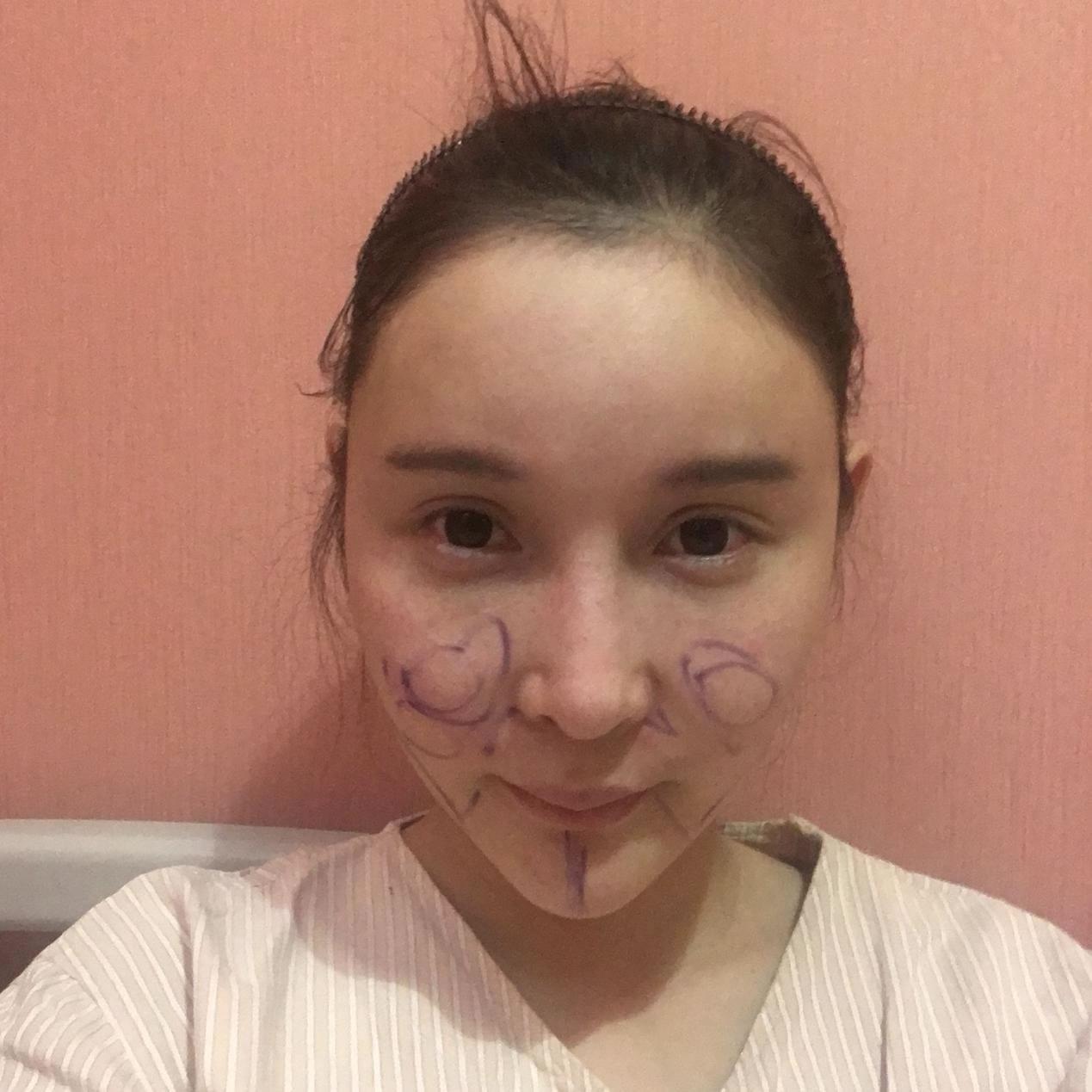 坐标韩国!在佳轮韩整形外科做脸部吸脂后很满意反馈给大家瞅瞅