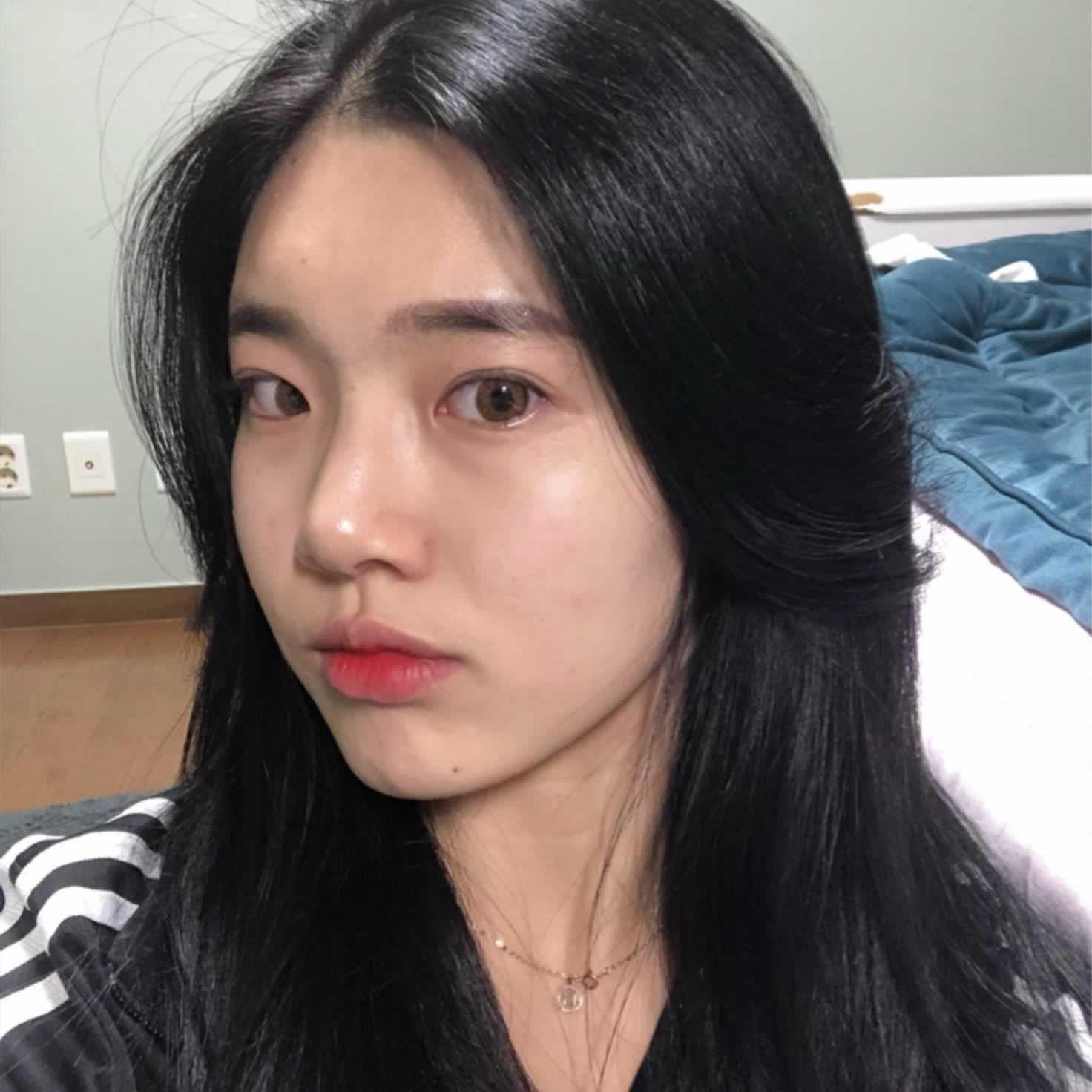 韩国做硅胶隆鼻效果怎么样呢?分享我在韩国做的硅胶隆鼻经历。