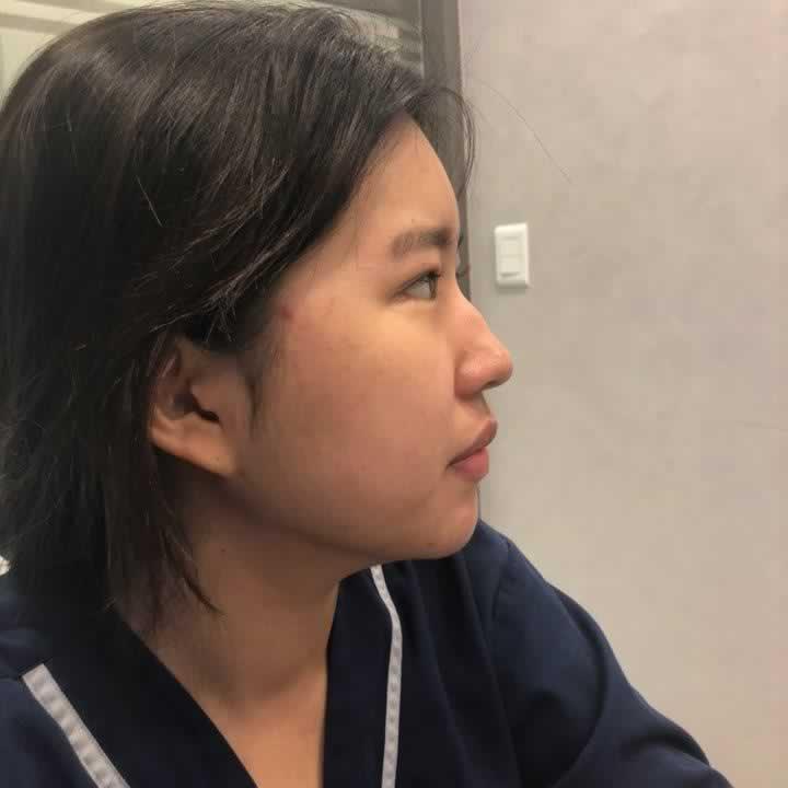 得知韩国整形医院不错,我毅然决然到韩国做了硅胶隆鼻手术,两个月的效果图。