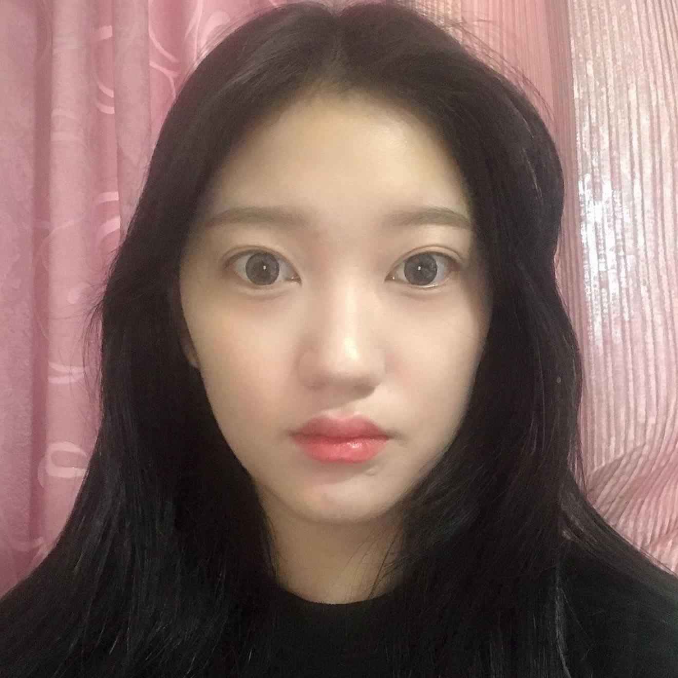 听说韩国的做鼻子挺好的,我就和朋友一起去韩国做了硅胶隆鼻手术,效果是真的好。