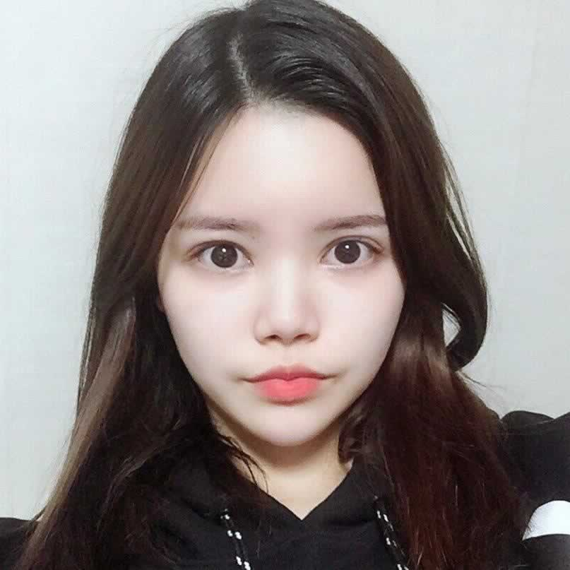 没有精致的鼻子,选择了韩国医院做了硅胶隆鼻效果很好。