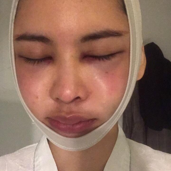 我在韩国做的下颌角和颧骨手术恢复很快,一个月左右就消肿的差不多啦~