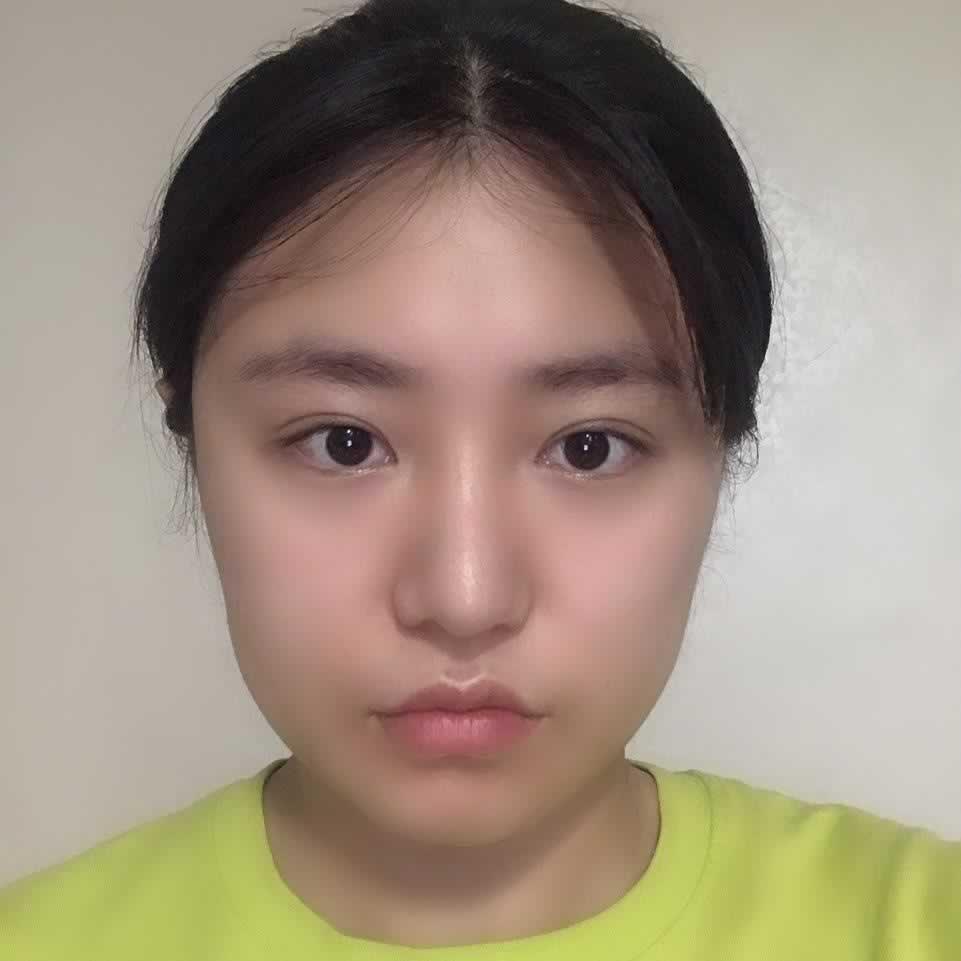韩国鼻部修复技术非常好,分享我做的鼻部修复手术的经历。
