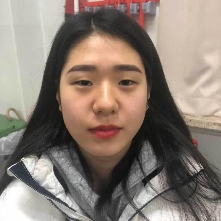 无敌丑的眼睛终于做了切开双眼皮手术,韩国的技术好,现在人人都羡慕我。