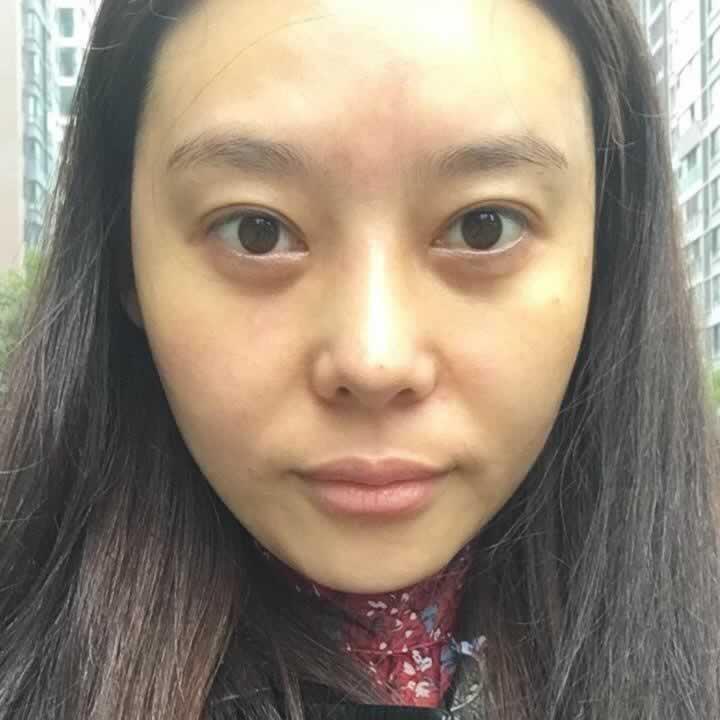 在韩国做的自体脂肪全脸填充让我变得更漂亮了,很喜欢现在的样子。