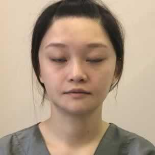 韩国鼻部多项手术怎么样?有没有别人说的那么邪乎。