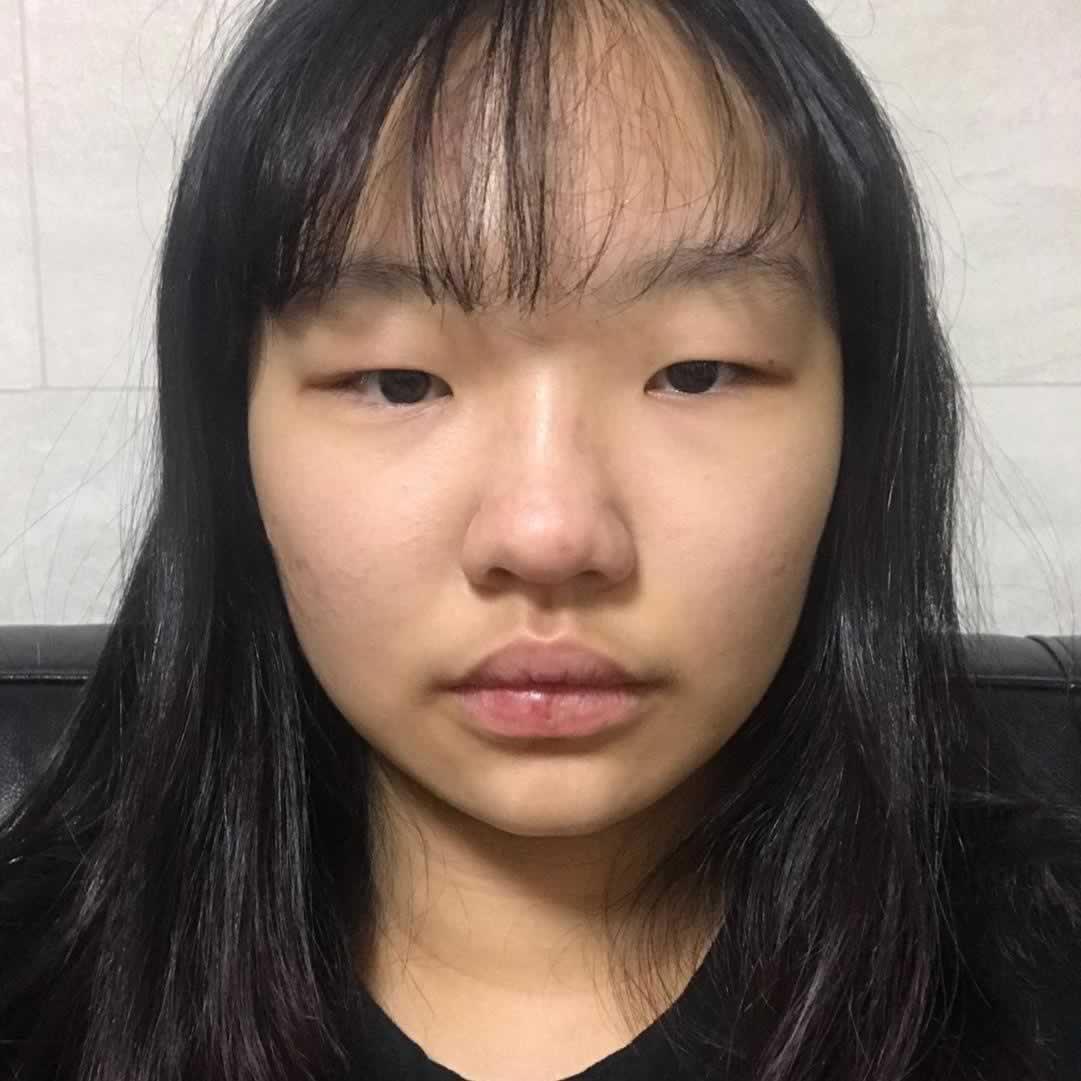 韩国做的埋线双眼皮手术超级的自然,就跟天生的一样。