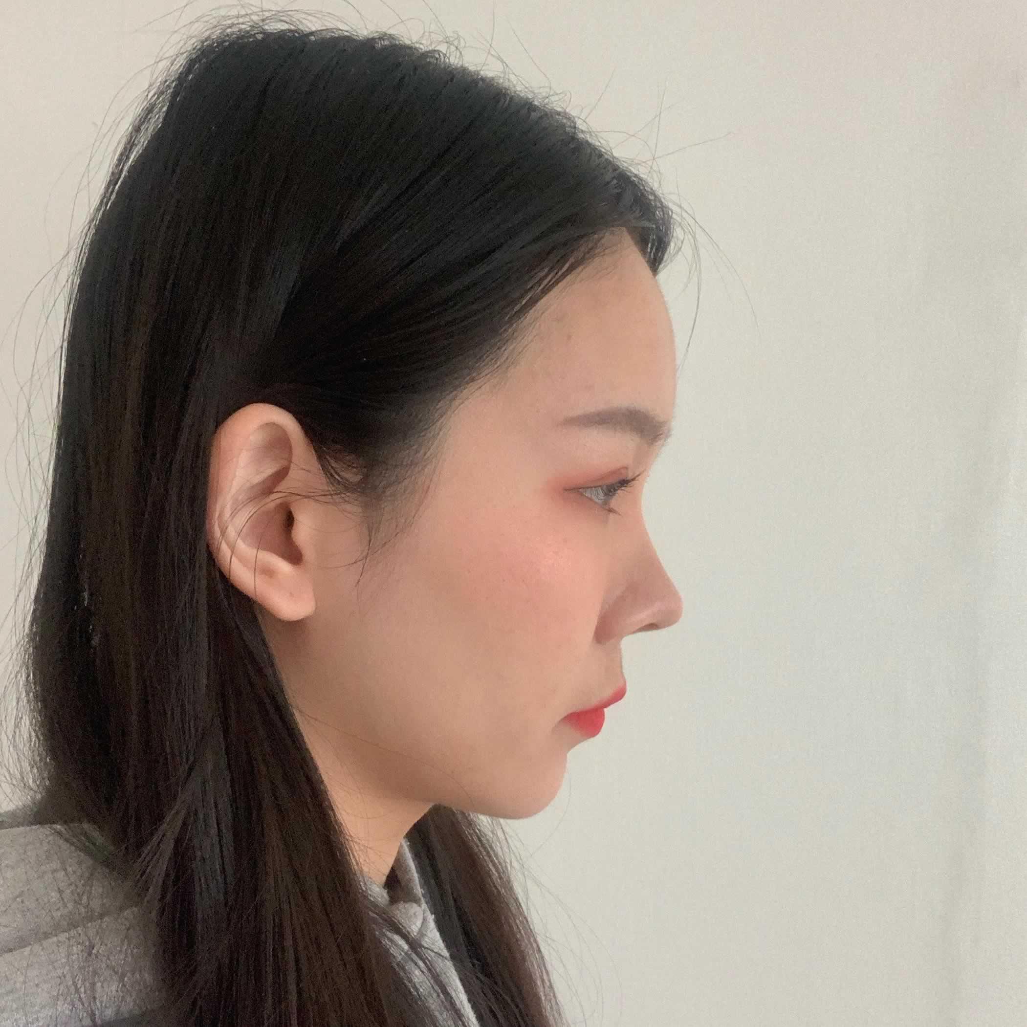 韩国做的玻尿酸去法令纹给我带来了多大的变化,来看看我的经历就知道了。