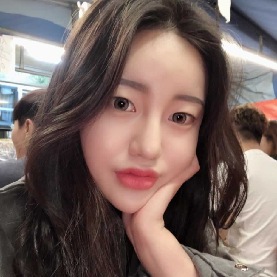 分享我在韩国做的切开双眼皮和鼻综合的经历,评价我的效果怎么样。