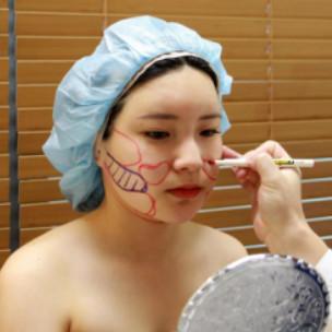 面部吸脂千万别乱做!选择医院是很重要的,还好我去韩国做的吸脂技术就是很牛。