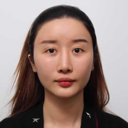 在韩国做了颧骨颧弓手术那简直就是换了张脸啊。