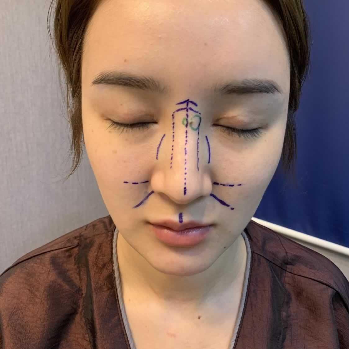 韩国最大的换脸手术V-LINE瓜子脸,这个手术做完效果很棒。