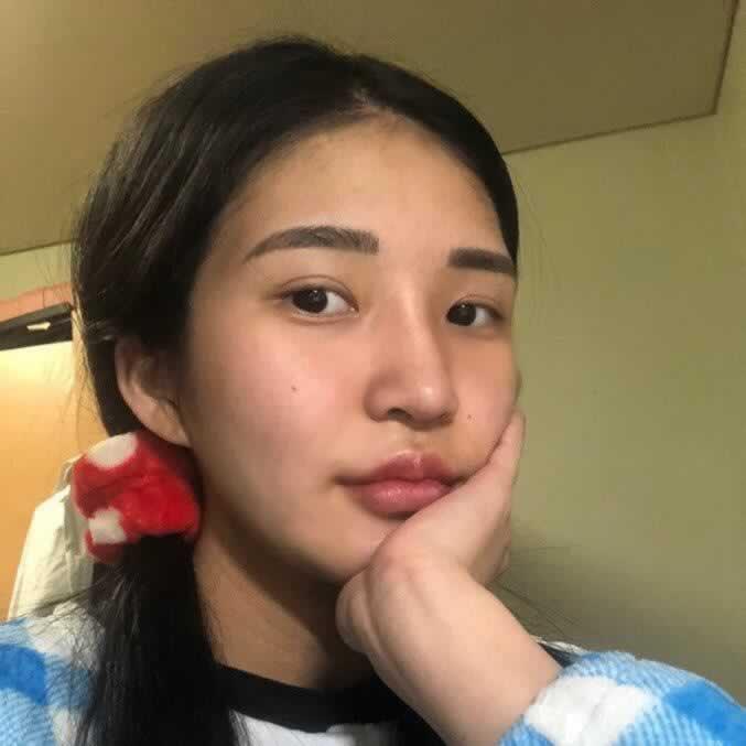韩国哪家医生做硅胶隆鼻效果好?真实的经历告诉你。
